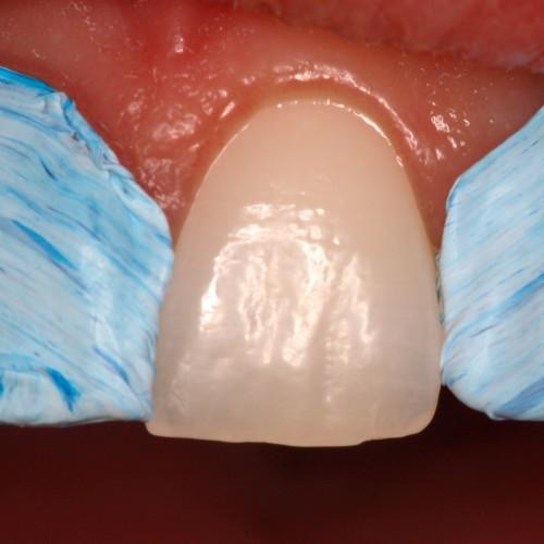 Isotape - Blister (5m) Dental Isolation Tape